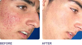 acne_treatment_ba